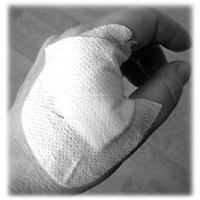 ferita alla mano